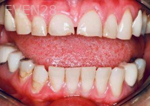 Donald-Tormey-Dental-Crowns-before-2