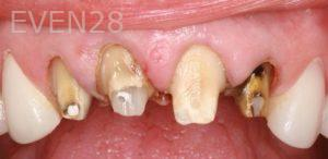 Donald-Tormey-Dental-Crowns-before-3