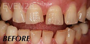 Donald-Tormey-Dental-Crowns-before-4