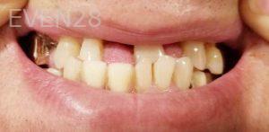 Douglas-Kim-Dental-Bridge-before-1