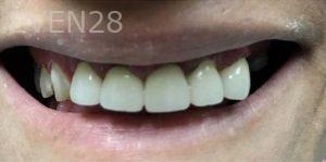 Douglas-Kim-Dental-Crowns-after-1