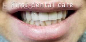 Douglas-Kim-Dental-Crowns-after-2