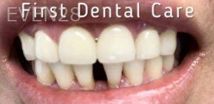 Douglas-Kim-Dental-Crowns-after-3