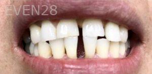 Douglas-Kim-Dental-Crowns-before-3