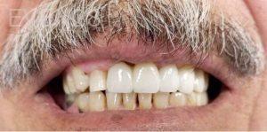 Douglas-Kim-Dental-Implants-after-1