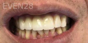 Douglas-Kim-Dental-Implants-after-2