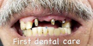Douglas-Kim-Dental-Implants-before-1
