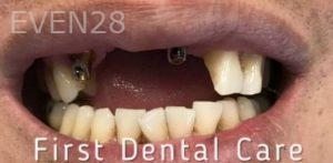 Douglas-Kim-Dental-Implants-before-2