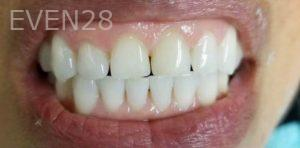 Douglas-Kim-Porcelain-Veneers-before-1