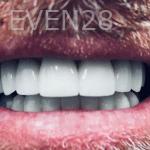 Elmira-Elahi-Dental-Crowns-after-2