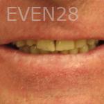 Elmira-Elahi-Dental-Crowns-before-2