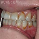 Elmira-Elahi-White-Fillings-before-1b