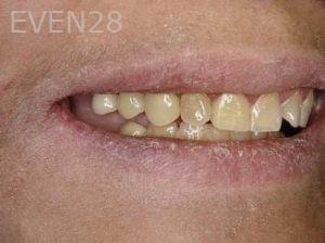 Ernest-Wong-Dental-Bridge-before-1