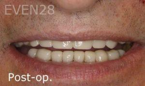 Ernest-Wong-Dental-Crowns-after-1