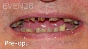 Ernest-Wong-Dental-Crowns-before-1