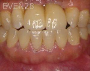 Ernest-Wong-Dental-Implants-after-1