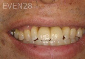 Ernest-Wong-Dental-Implants-after-1b
