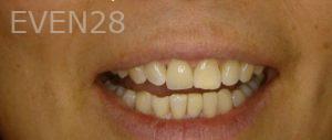 Ernest-Wong-Dental-Implants-after-2