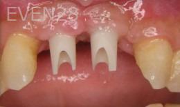 Ernest-Wong-Dental-Implants-before-1c