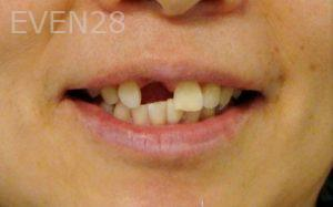 Ernest-Wong-Dental-Implants-before-2