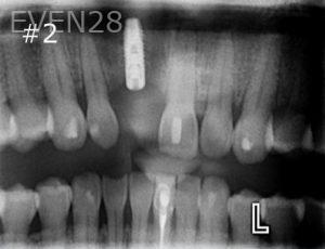 Ernest-Wong-Dental-Implants-before-2b