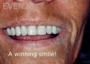 Ernest-Wong-Full-Mouth-Dental-Implants-after-1