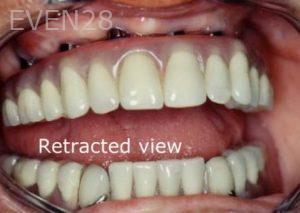 Ernest-Wong-Full-Mouth-Dental-Implants-after-1b
