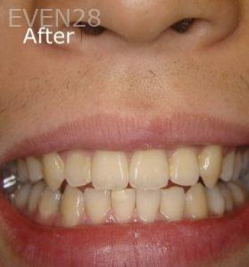 Ernest-Wong-Invisalign-Clear-Aligners-after-1