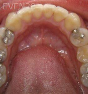Ernest-Wong-Invisalign-Clear-Aligners-after-1c