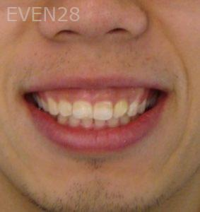 Ernest-Wong-Invisalign-Clear-Aligners-after-2