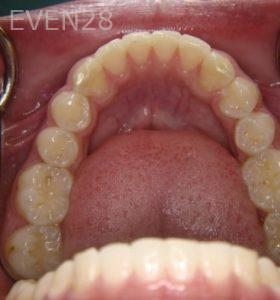 Ernest-Wong-Invisalign-Clear-Aligners-after-2c