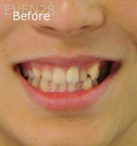 Ernest-Wong-Invisalign-Clear-Aligners-before-1