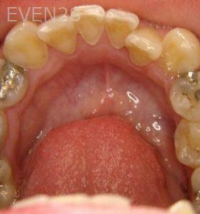 Ernest-Wong-Invisalign-Clear-Aligners-before-1c