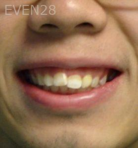Ernest-Wong-Invisalign-Clear-Aligners-before-2
