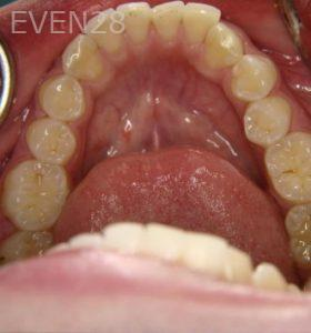 Ernest-Wong-Invisalign-Clear-Aligners-before-2c