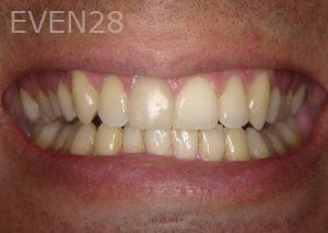 Ernest-Wong-Orthodontic-Braces-after-1