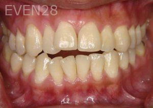 Ernest-Wong-Orthodontic-Braces-before-2