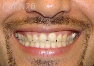 Ernest-Wong-Porcelain-Veneers-before-2
