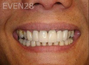 Ernest-Wong-Smile-Makeover-after-1