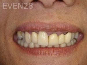 Ernest-Wong-Smile-Makeover-before-1