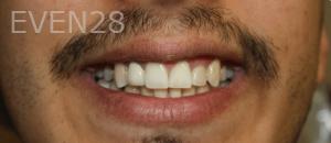 Fenghua-Fu-Dental-Crown-after-1