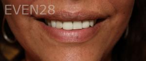 Fenghua-Fu-Dental-Crown-after-2