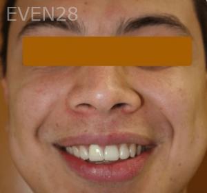 Fenghua-Fu-Dental-Crown-after-3