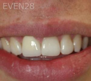 Fenghua-Fu-Dental-Crown-after-3b