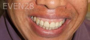 Fenghua-Fu-Dental-Crown-after-4