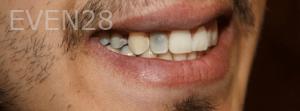 Fenghua-Fu-Dental-Crown-before-1