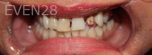 Fenghua-Fu-Dental-Crown-before-2