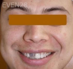 Fenghua-Fu-Dental-Crown-before-3