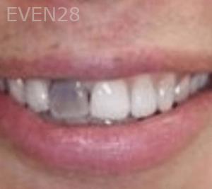 Fenghua-Fu-Dental-Crown-before-3b