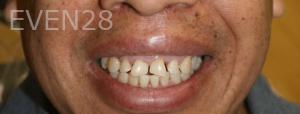 Fenghua-Fu-Dental-Crown-before-4